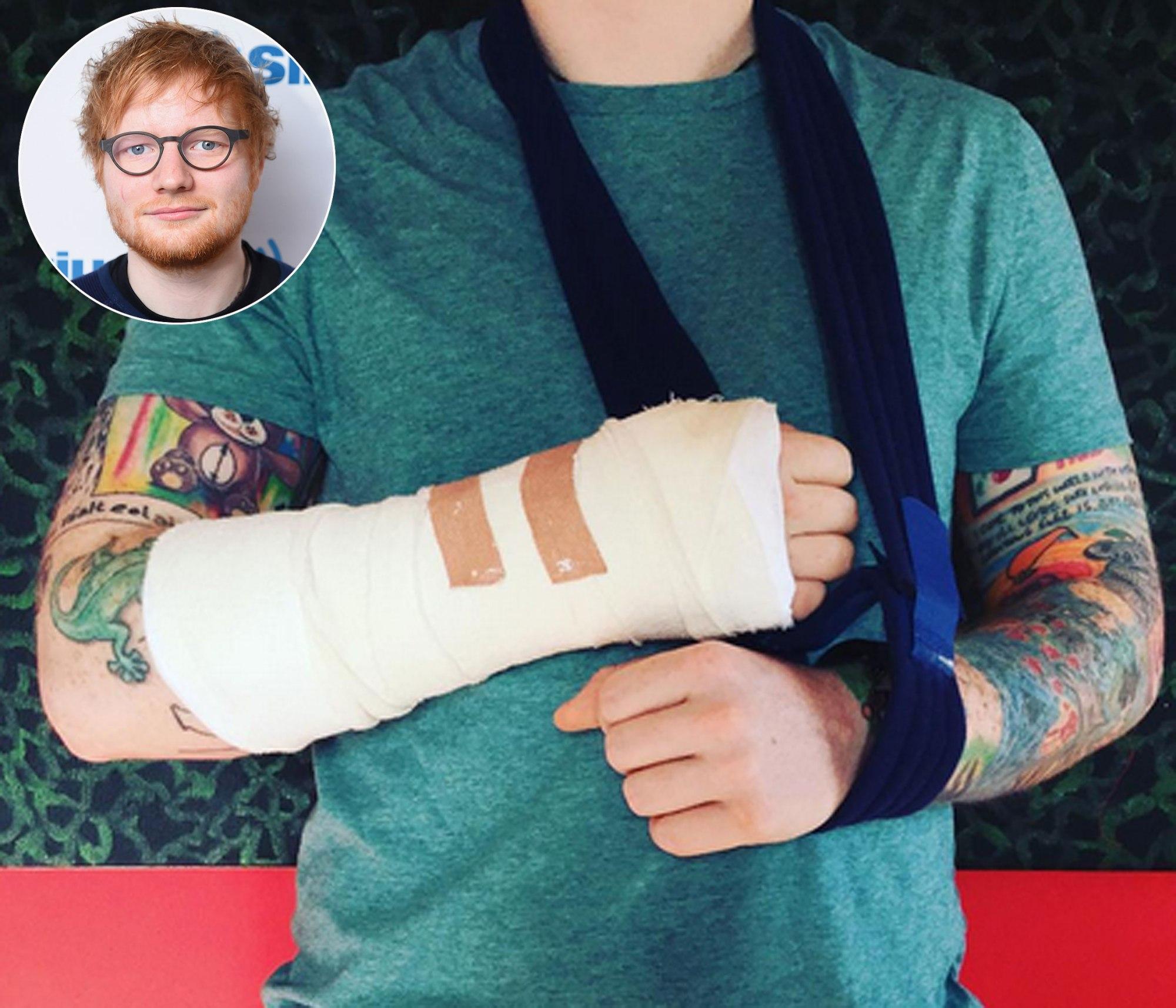 Photo of Jatuh Basikal, Ed Sheeran Batal 4 Konsert Jelajah
