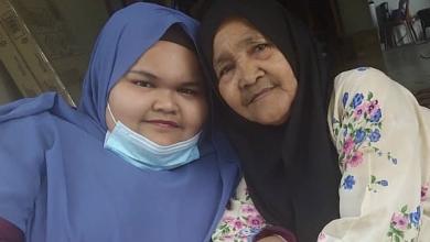Photo of Wani Comel Alami Jangkitan Kuman Di Paru-Paru, Komplikasi Jantung Bengkak